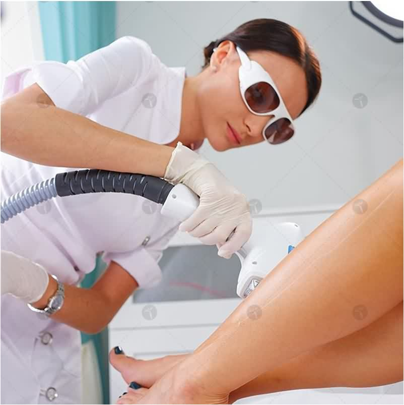 What happens during laser hair removal?