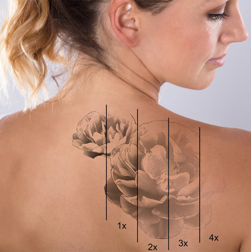 HOW MANY TREATMENTS ARE NEEDED FOR LASER TATTOO REMOVAL?