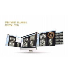 Treatment Planning System